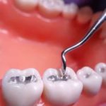 محاذير ونصائح إذا كان لديك حشو أسنان فضي